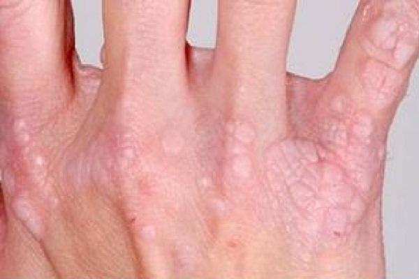 Virus hpv yang berbahaya, Intraduktal papilloma tedavisi. Paraziti intestinali ameteli